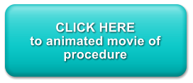 CLICK HERE to animated movie of procedure